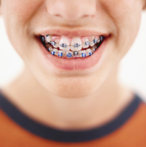 Invisalign vs. Metal Braces