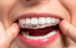 Orthodontists in Middle Village, NY