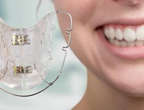 Recommendations for Taking Care of Retainers